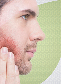 jackeline-mota-dermatologia-clinica-foliculite-thumb
