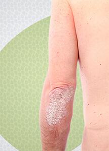 jackeline-mota-dermatologia-clinica-psoriase-thumb
