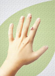 jackeline-mota-dermatologia-clinica-verrugas-thumb